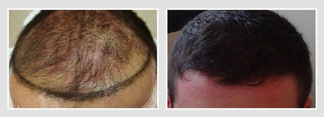 FUE Hair Transplant Patient Before and After