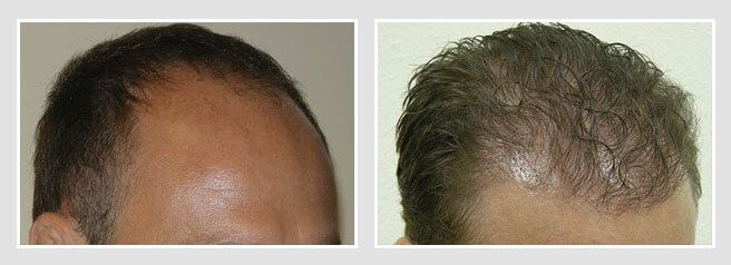 FUT Hair Transplant Before and After Patient