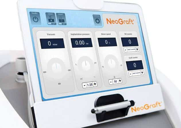 NeoGraft Robotic Assisted FUE Hair Transplant Machine