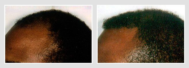 African American man before and after his hair transplant