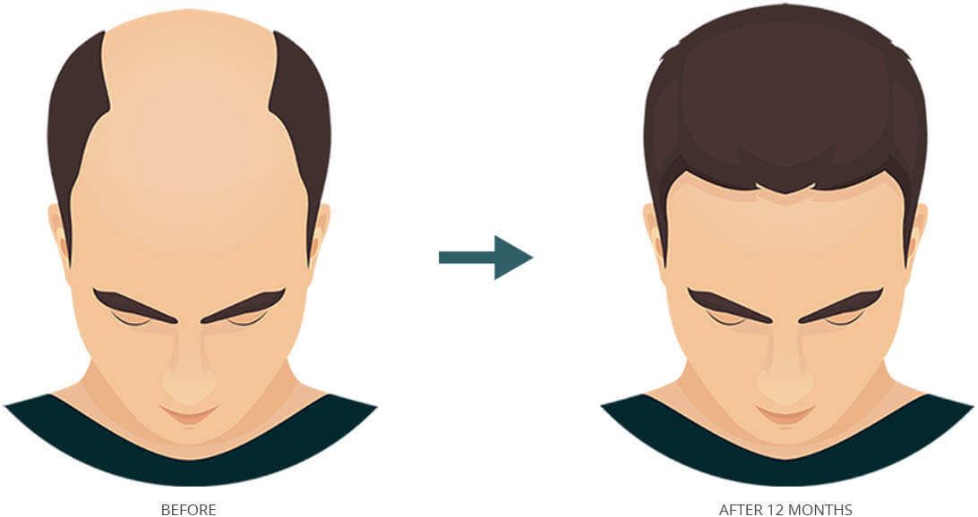 Affordable Hair Transplant FUE Process
